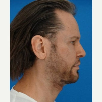 35-44 year old man treated with Neck Lift after 1706852