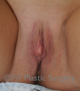 34 y.o. female for Labiaplasty before 1218106
