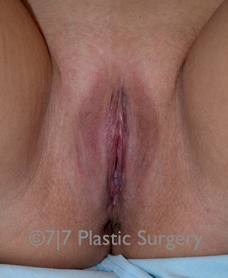 34 y.o. female for Labiaplasty after 1218106