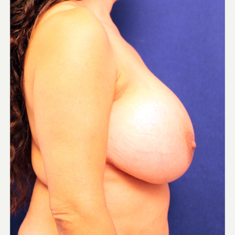 45-54 year old woman treated with Breast Implant Removal before 3266341
