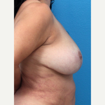 45-54 year old woman treated with Breast Implant Removal after 3266341