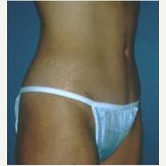 Tummy Tuck after 3720531