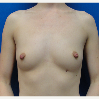 25-34 year old woman treated with Breast Augmentation before 3019190