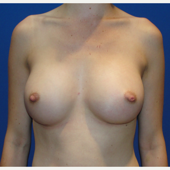 25-34 year old woman treated with Breast Augmentation after 3019190