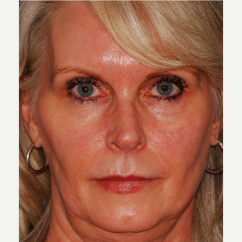 55-64 year old woman treated with Facelift before 3625221