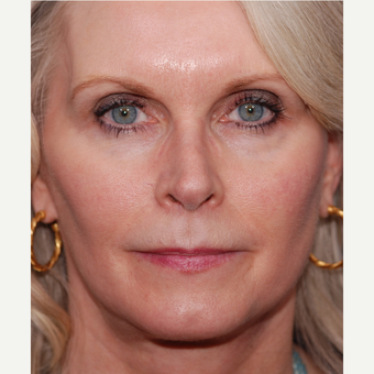 55-64 year old woman treated with Facelift after 3625221