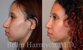 16 year-old female before and one year after Rhinoplasty before 3447313