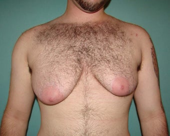 "FTM ""Top Surgery"" for chest masculinization before 867217"