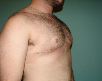 "FTM ""Top Surgery"" for chest masculinization 867217"