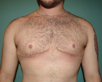 "FTM ""Top Surgery"" for chest masculinization after 867217"