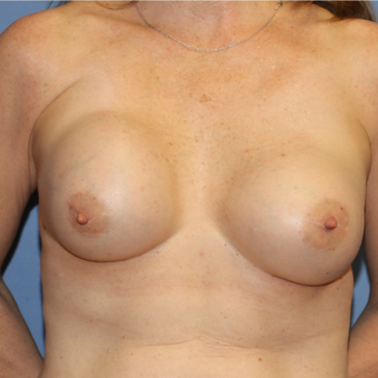Severe capsular contracture treated with implant and site exchange before 3080992