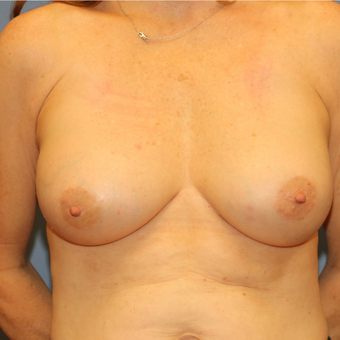 Severe capsular contracture treated with implant and site exchange after 3080992