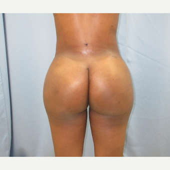 25-34 year old woman treated with Brazilian Butt Lift after 3725032