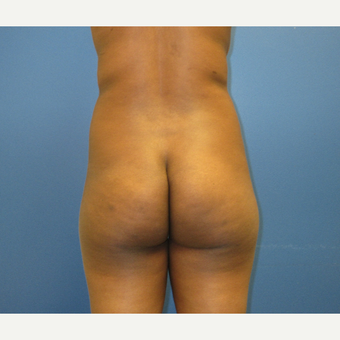 25-34 year old woman treated with Brazilian Butt Lift before 3725032