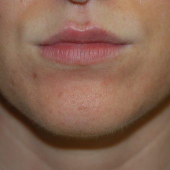 25-34 year old woman treated with Restylane to enhance her lips after 3384070