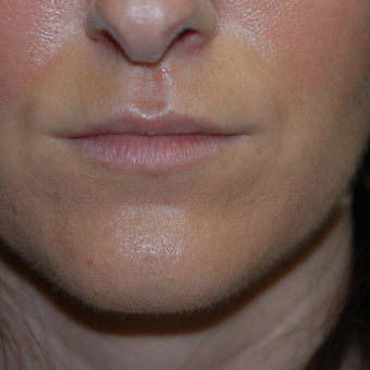 25-34 year old woman treated with Restylane to enhance her lips before 3384070