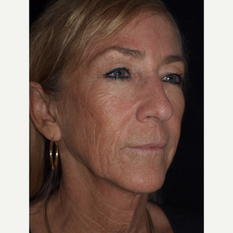 57 year old woman treated with Facelift, Necklift, Upper Blepharoplasty, Fat Grafts & TCA Peel before 3773565