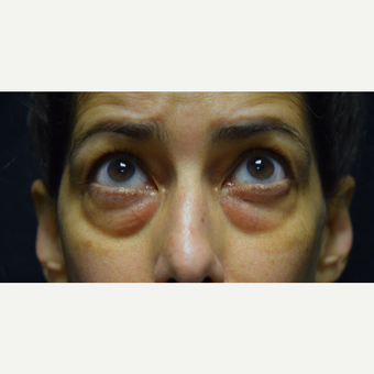 45-54 year old woman treated with Eyelid Surgery before 3424388