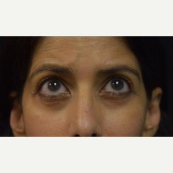45-54 year old woman treated with Eyelid Surgery after 3424388