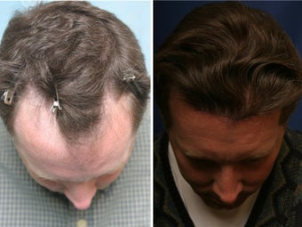 Hair Transplant before 84183
