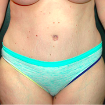 35 year old woman treated with Tummy Tuck after 3578281