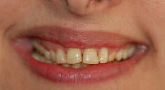 A 38 Year Old Female Treated for Unilteral gummy smile and excessive wear.