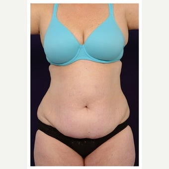 45-54 year old woman treated with Mini Tummy Tuck before 1567371