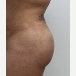 35-44 year old woman treated with Brazilian Butt Lift after 3582204