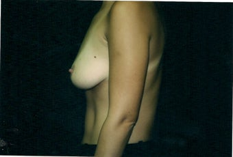 Breast Augmentation before 1362584