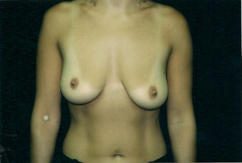 Breast Augmentation 1362584