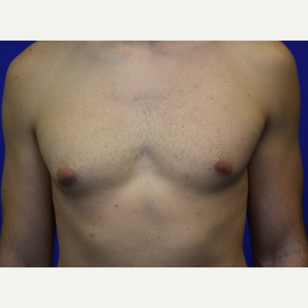 25-34 year old man treated with Male Breast Reduction before 3259673
