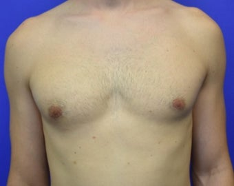 25-34 year old man treated with Male Breast Reduction after 3259673