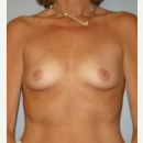 25-34 year old woman treated with Breast Implants before 3108081
