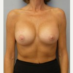 25-34 year old woman treated with Breast Implants after 3108081