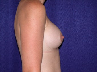 Breast Augmentation after 204622