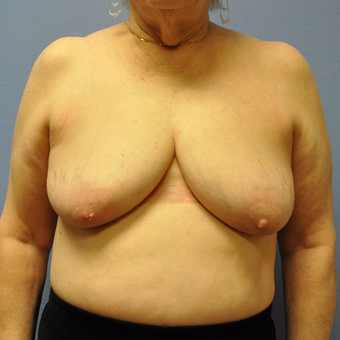 65-74 year old woman treated with Breast Lift with Implants before 3254922