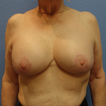 65-74 year old woman treated with Breast Lift with Implants after 3254922