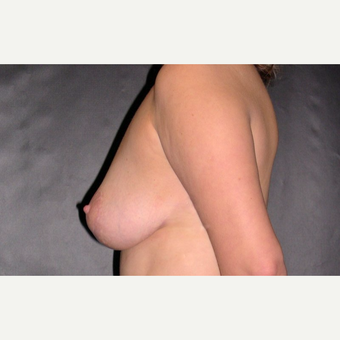 45-54 year old woman treated with Breast Lift after 3246225