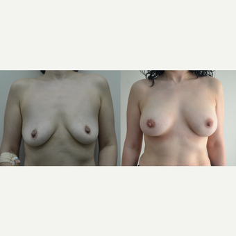35-44 year old woman treated with Breast Lift before 3238853