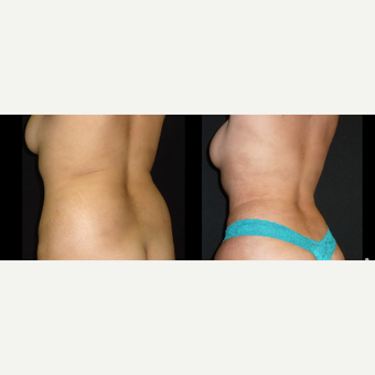 35-44 year old woman treated with Liposuction before 3720916