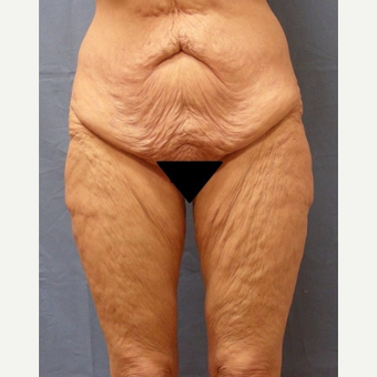 45-54 year old woman treated with Body Lift before 3630257
