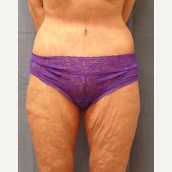 45-54 year old woman treated with Body Lift after 3630257