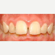 35-44 year old man treated with Lingual Braces