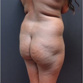 25-34 year old woman treated with Power-Assisted Liposuction (PAL) before 3363940