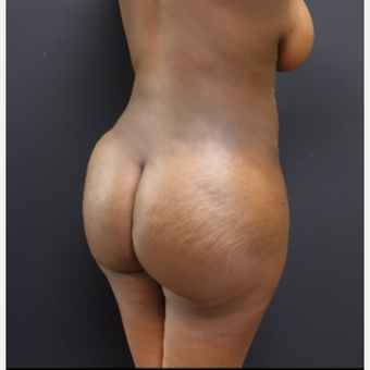 25-34 year old woman treated with Power-Assisted Liposuction (PAL) after 3363940