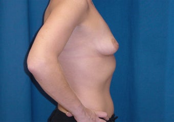 Breast Lift 1161332