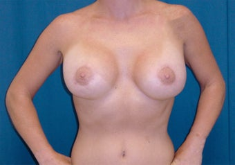 Breast Lift after 1161332