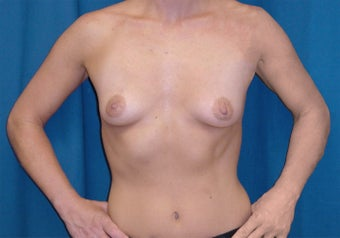 Breast Lift before 1161332