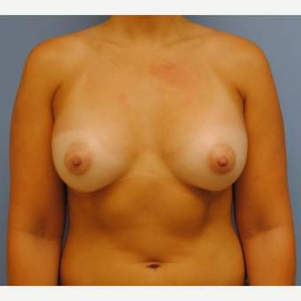 23 year old woman treated with Breast Augmentation using 375 cc silicone mod profile plus after 3208107
