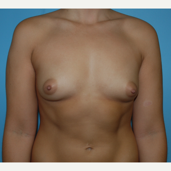 23 year old woman treated with Breast Augmentation using 375 cc silicone mod profile plus before 3208107
